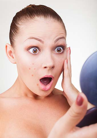 The Real Truth About IPL Photofacials,Dark Spots, Age Spots and Brown Spots