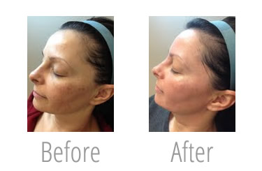 skin resurfacing las vegas